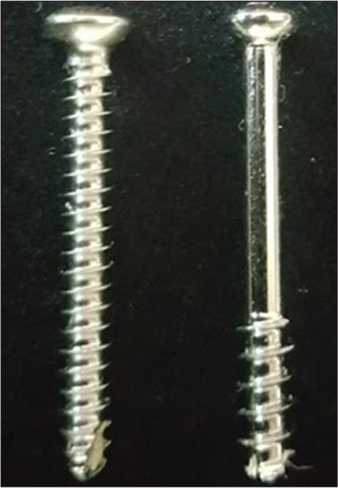 Photograph of the 2 types of screws: fully threaded solid cortical (left) and partially threaded cannulated cancellous (right).