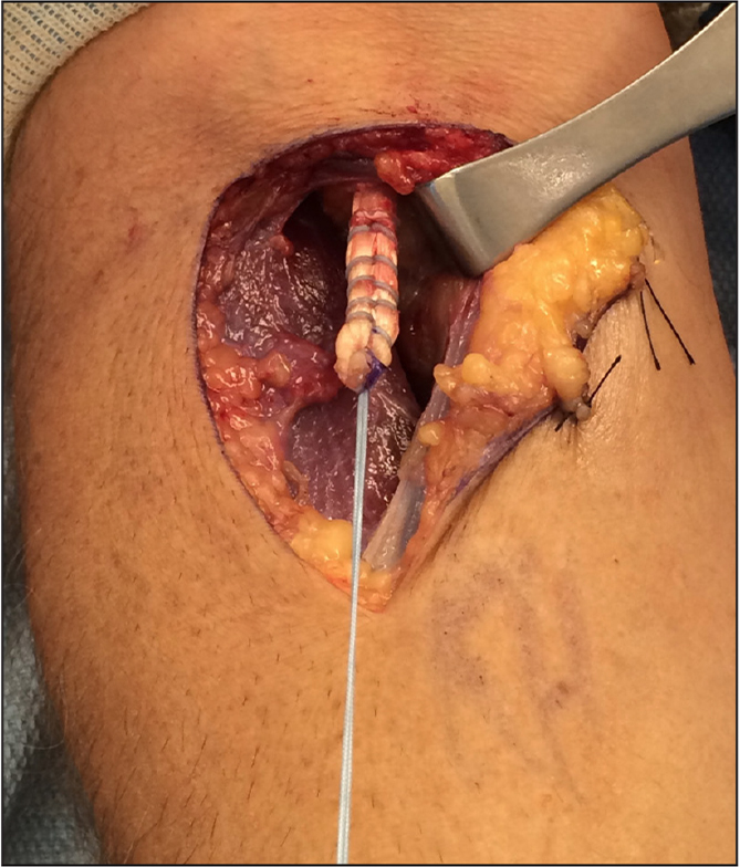 Intraoperative photograph showing the tendon stump after being prepared using a locking loop stitch configuration. The suture tails often are used as counter-tension to complete proximal soft tissue release, allowing for adequate excursion and anatomic repair.