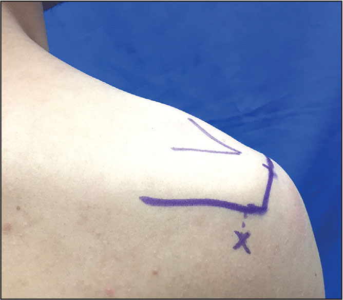 A posterior route of injection was located 1 cm posterior and inferior to the posterolateral border of the acromion. The needle was directed cephalad, anteriorly, and medially toward the subacromial space.