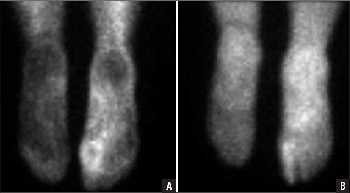 Cellulitis on technetium-labeled diphosphonate bone scan. Angiographic images showing hyperemia of the right foot (A). Delayed images showing persistent soft tissue uptake diffusely throughout the right foot, without focal increased activity to suggest osteomyelitis (B).
