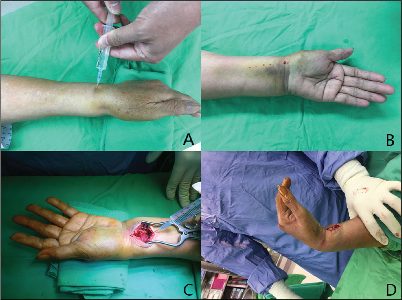 The wide-awake local anesthesia no tourniquet technique for distal radius fracture. Hematoma block via 3- to 5-mL 1% lidocaine injection from the dorsal site into the fracture site (A). Subcutaneous injection with 1% lidocaine mixed with 1:40,000 epinephrine was administered onto the operative volar side of the distal radius (B). An additional 5 mL of 1% lidocaine mixed with 1:40,000 epinephrine was injected beneath the pronator quadratus (C). Testing the impingement of wrist joint and tendon function before wound closure (D).