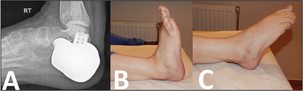 Lateral radiograph of the calcaneus at last follow-up (A). Photographs showing excellent clinical result with satisfactory ankle dorsiflexion (B) and plantarflexion (C).