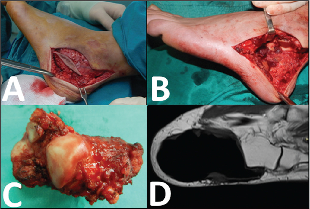 "Lateral ""L-shaped"" incision including the previous biopsy tract (A). En bloc resection of the calcaneus (B). The resected calcaneus specimen (C). Magnetic resonance image showing the provisional bone cement spacer at the resection site (D)."