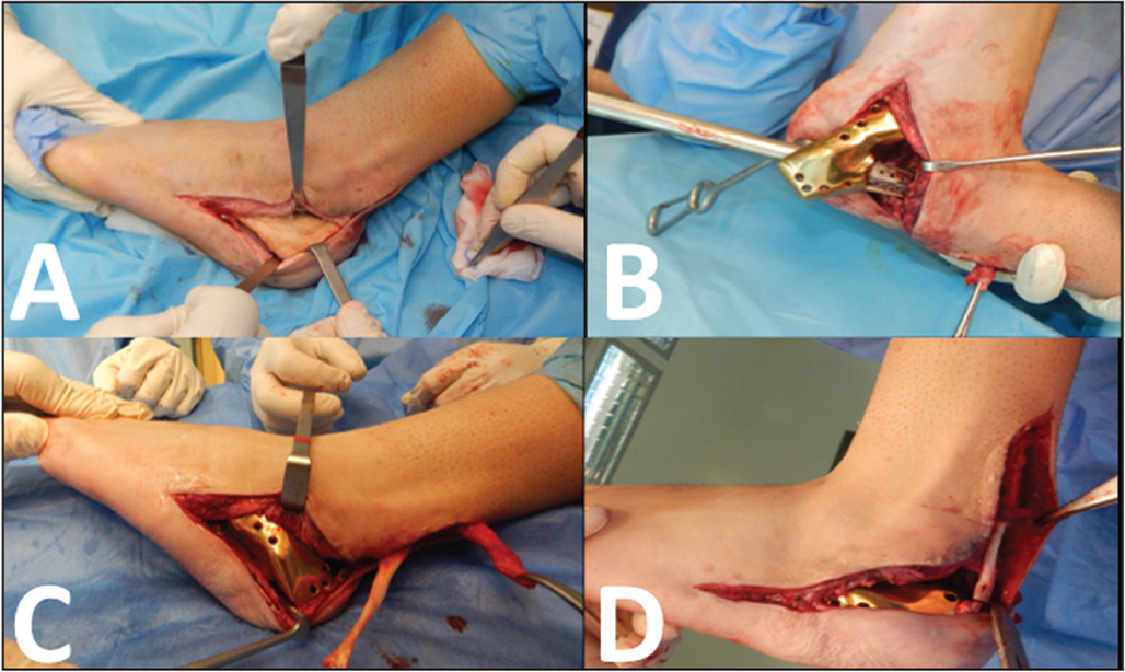 Removal of the bone cement spacer through the previous incision (A); fixation of the 3-dimensional printed calcaneus implant to the talus using a special impactor (B); and reattachment of the Achilles tendon, enhanced with the flexor hallucis longus tendon, to the calcaneus implant (C, D).