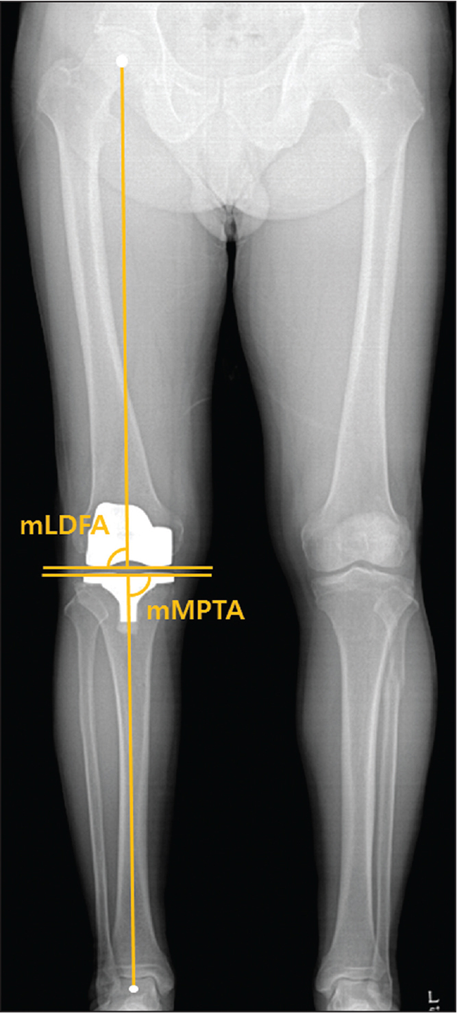 Measurement of mechanical lateral distal femoral angle (mLDFA) and mechanical medial proximal tibial angle (mMPTA).