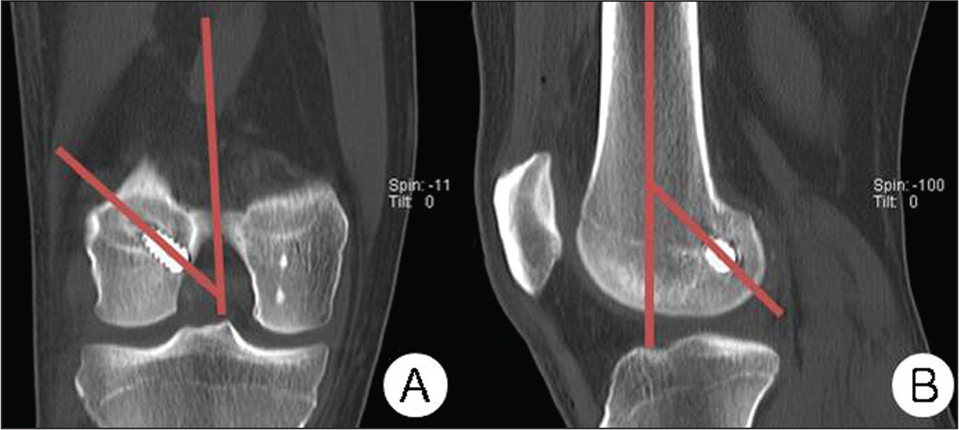 A line parallel to the axis of the femoral tunnel and a line bisecting the femoral shaft were used to calculate the coronal inclination of the femoral tunnel on coronal computed tomography scans (A). The sagittal inclination of the femoral tunnel was calculated relative to a line bisecting the femoral shaft in the lateral views of sagittal computed tomography scans (B).