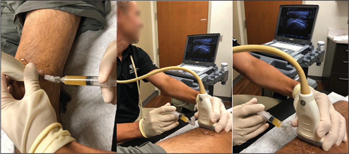 Clinical photographs showing an injection of platelet-rich plasma under ultrasound guidance.