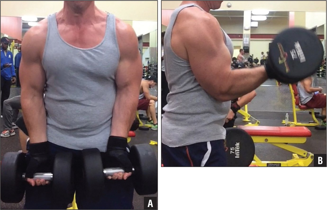 Clinical photograph 18 months after the injury showing normal symmetrical contour of both arms (A). The patient was able to return to the pre-injury weightlifting regimen of 40.8- to 45.4-kg biceps curls (B).