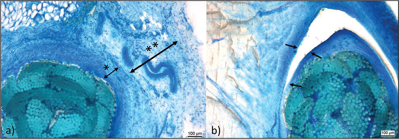 Ethibond. At week 6, inner capsule (*) and external capsule (**) with unorganized tissue and numerous vessels (a). At week 16, dissection of the inner and the outer capsule, covered by an epithelioid tissue (arrows). Well-organized surrounding tissue (b).