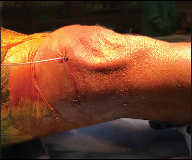 The knee immediately after excision. Suction was placed to avoid creating a cavity or recollecting fluid.