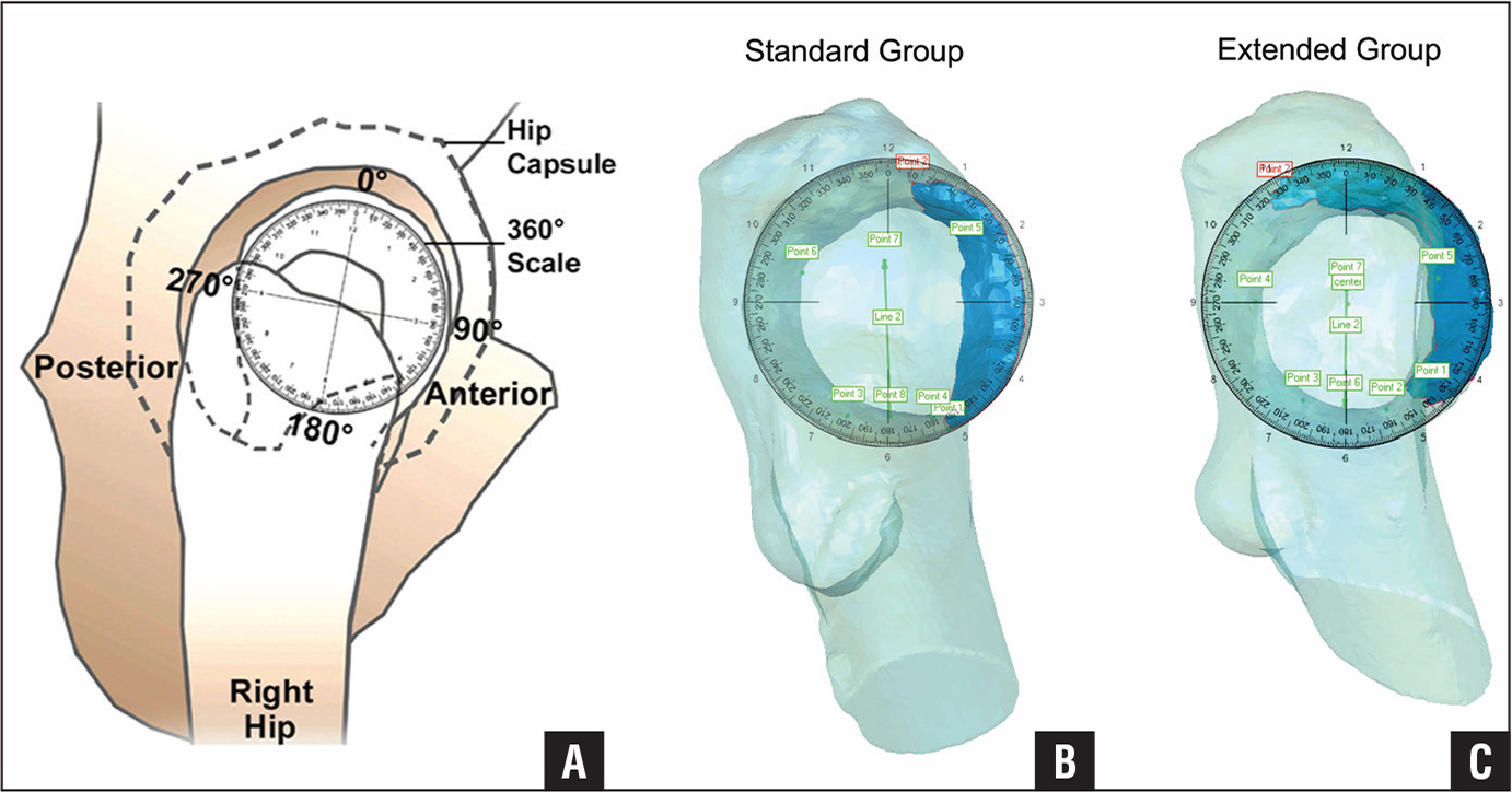 Images of the femoral head and neck viewed as a clock face based on right hip equivalents as used in the cadaveric study of Lazaro et al28 evaluating arthroscopic femoral osteochondroplasty resection margins. A clock face including 360° markings was applied with the 12-o'clock position (0°) oriented toward the most superior aspect of the femoral neck and the 6-o'clock position (180°) oriented toward the most inferior aspect of the femoral neck to allow for the precise measurement of resection margins in all specimens (A). Bright blue is used to indicate the arthroscopic resection margins, with the standard resection margin (B) and the extended resection margin (C) shown. In the extended group, extending the resection margin an average of 41.3° posterior to 12 o'clock resulted in decreased perfusion of the femoral head.