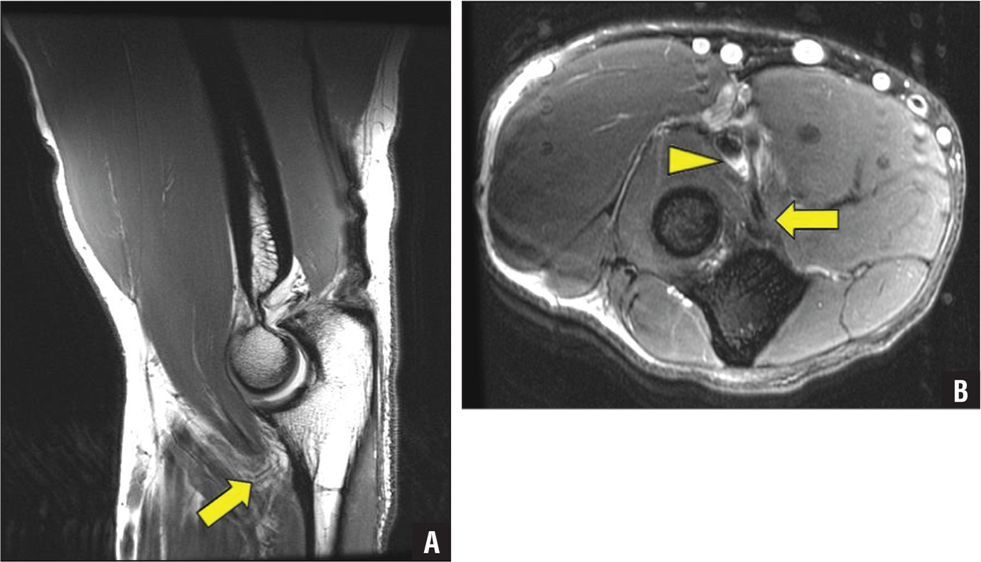 Sagittal proton density (A) and axial T2-weighted fat-saturated (B) magnetic resonance images of the elbow showing a full-thickness tear of the brachialis tendon insertion (arrow) and the mild bicipitoradial radial bursitis (arrowhead).