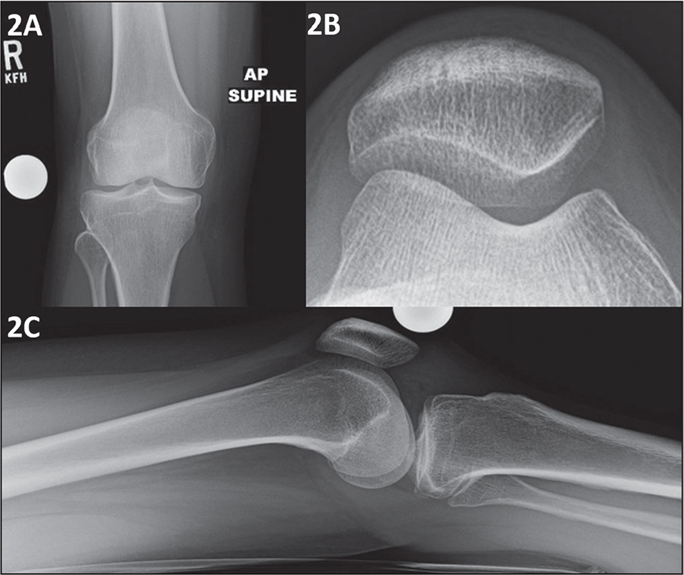 Anteroposterior (A), Merchant (B), and lateral (C) radiographs showing no acute abnormality at 5 months postoperatively.