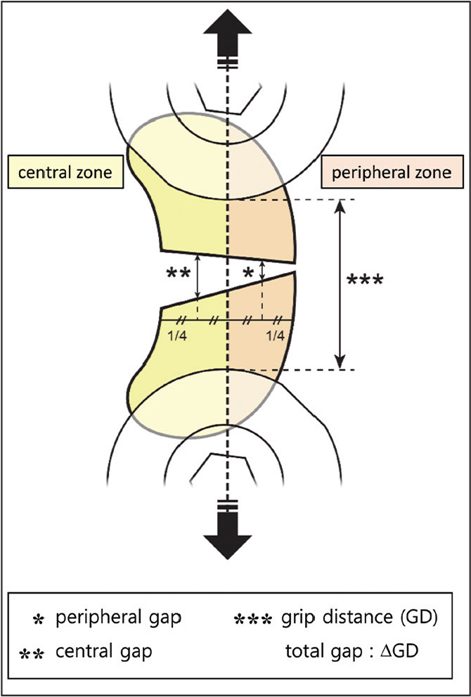 Gap configuration analysis. Central and peripheral gap were measured separately at the exact midpoint of the central and peripheral zones to evaluate suture strength. Total gap was defined as the change in distance between 2 tissue clamps.