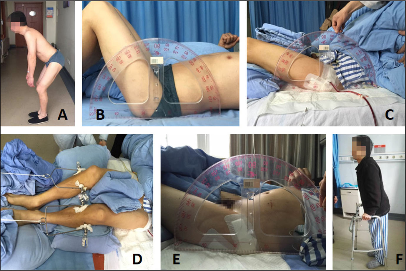 A representative patient with ankylosing spondylitis in the experimental group. Preoperative range of motion in hip flexion is 90° (A). Preoperative range of motion in hip extension is 60° (B). Range of motion of the hip is 40° after soft tissue release of the hip joint and femoral osteotomy (C). Supracondylar bone traction (D). Range of motion of the hip is 20° after supracondylar bone traction (E). Range of motion of the hip is 10° after total hip arthroplasty (F).