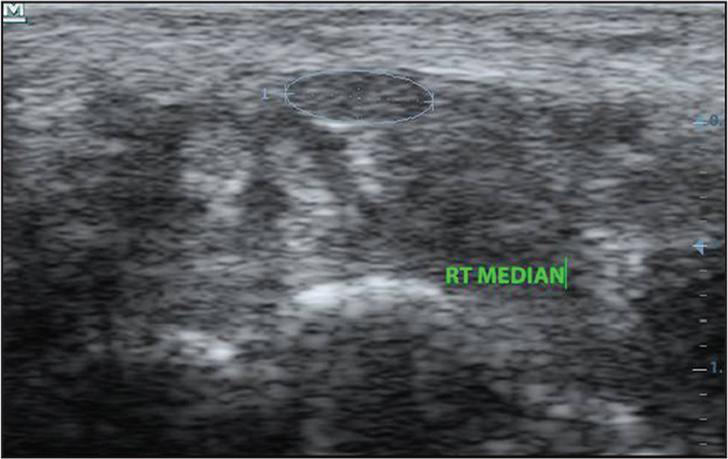 Ultrasonography image showing the short axis view of a normal right median nerve in an asymptomatic female patient (mediolateral diameter, 0.56 cm; cross-sectional area, 8.9 mm2).
