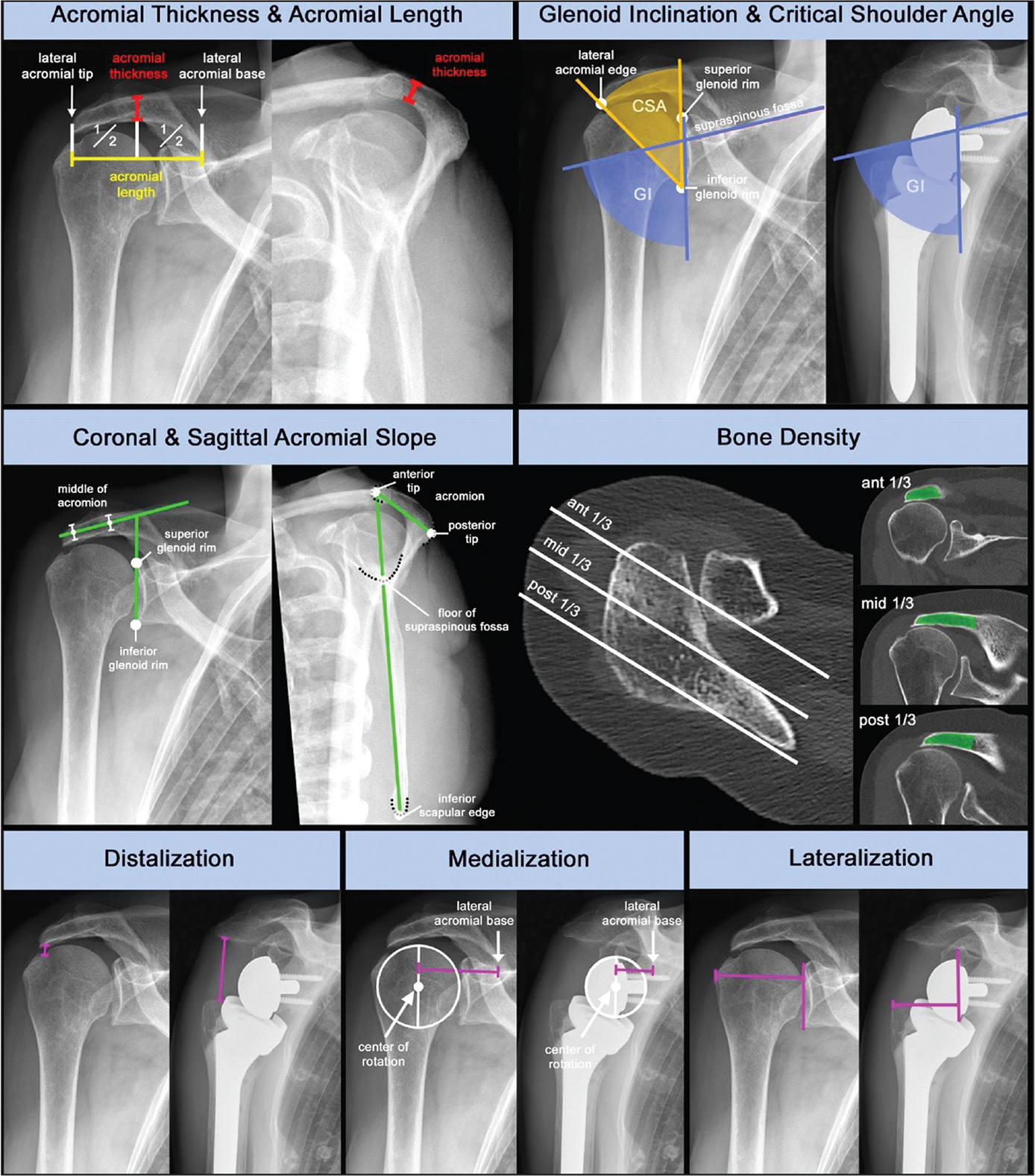 Pre- and postoperative measurements on plain radiographs and computed tomography scans.