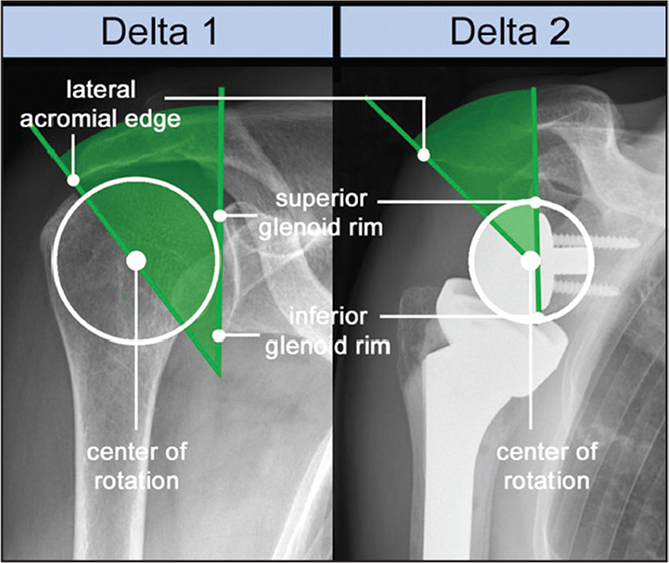 Delta angle is defined by a line connecting the superior and the inferior border of the glenoid fossa and a second line from the lateral acromial border through the center of rotation of the glenohumeral joint measured on anteroposterior radiographs. The preoperative angle was called delta 1 and the postoperative angle was called delta 2. The difference between these 2 angles from pre- to postoperatively was defined as the delta angle.