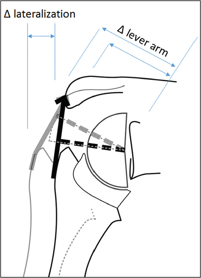 The lever arm of the deltoid muscle is increased when the humerus, respectively the greater tuberosity, is lateralized. With an increased lever arm, less muscle force is required to achieve the same movement.