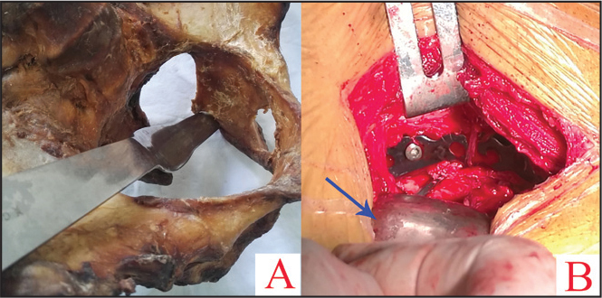 Location of placement of the straight retractor (A). Intraoperative application of the straight retractor (arrow) (B).