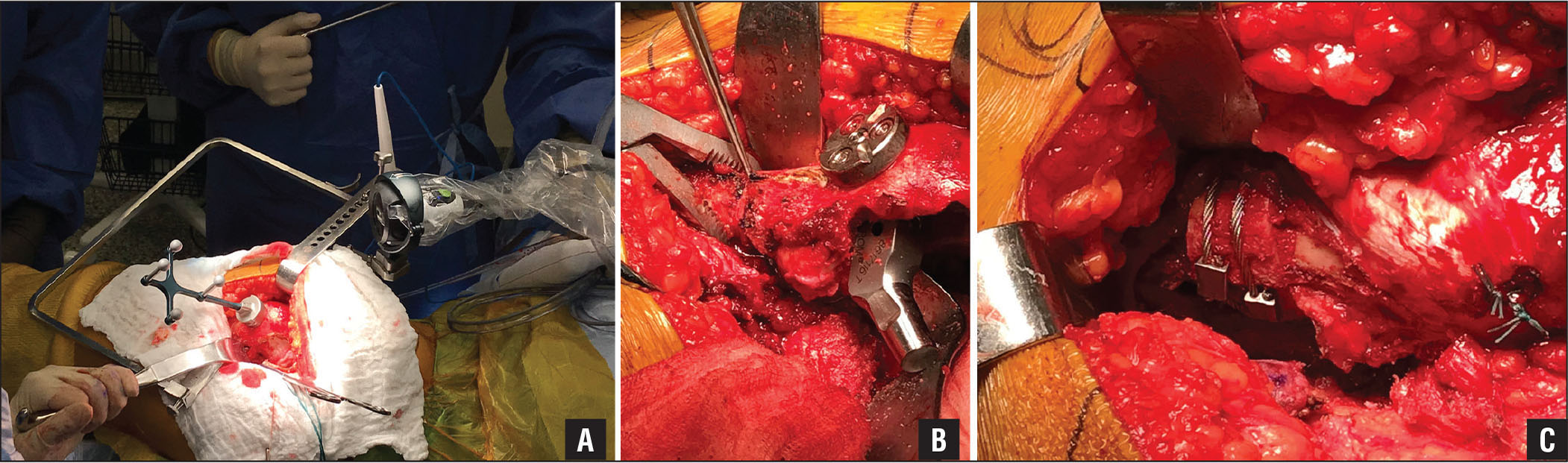 Intraoperative 3-dimensional mini-optical navigation setup showing camera platform attached to the iliac crest and femur platform attached to the greater trochanter (A). Subtrochanteric osteotomy: pre-osteotomy (B) and post-osteotomy (C).