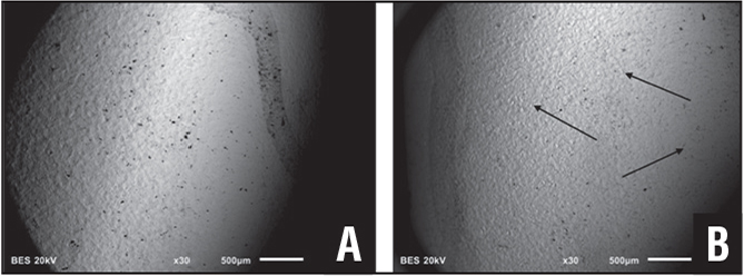 A rod surface region where biofilm is present. The black dots are corrosion pits. The dark line to the right is an ink mark denoting the boundary of biofilm as observed in the operating room (A). The rod surface outside of the biofilm. Surface cracks are readily apparent (arrows) (B).