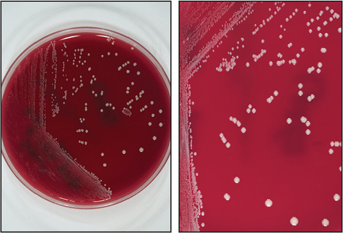 Small (1 to 2 mm), white colonies of Cutibacterium acnes growing on anaerobic blood agar (Centers for Disease Control and Prevention media).