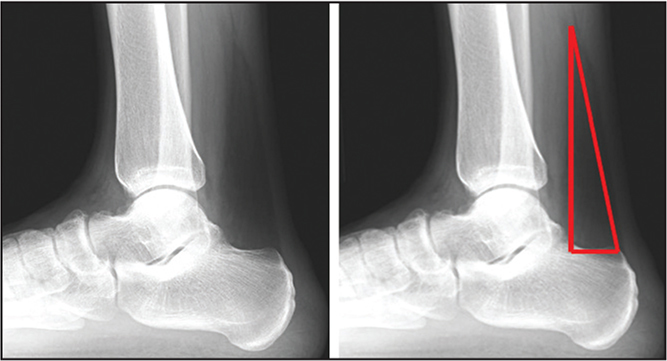 Normal lateral ankle radiographs showing intact Kager's triangle. The radiograph on the right outlines Kager's triangle with a red triangle.