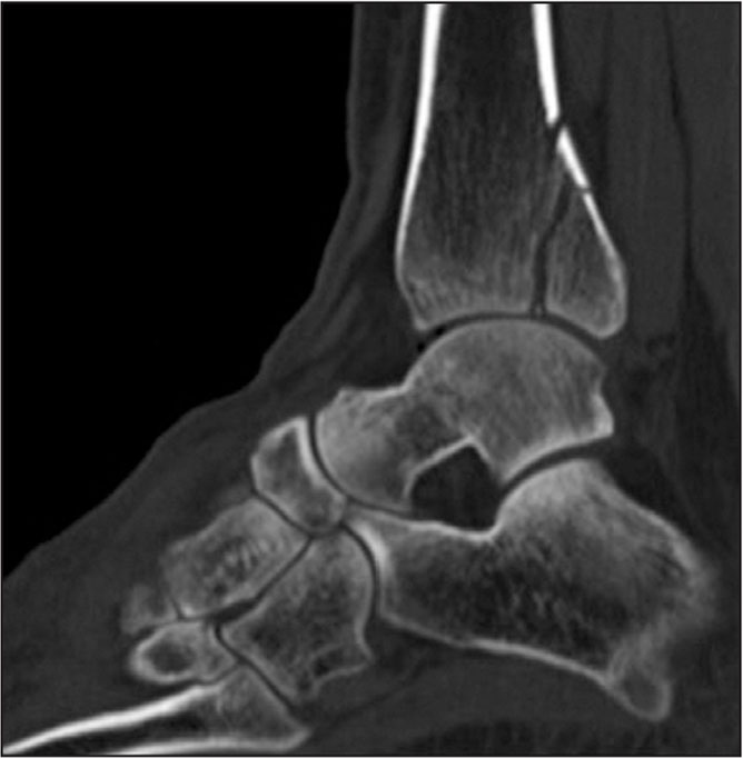 Preoperative sagittal computed tomography scan showing a large posterior malleolus fracture.