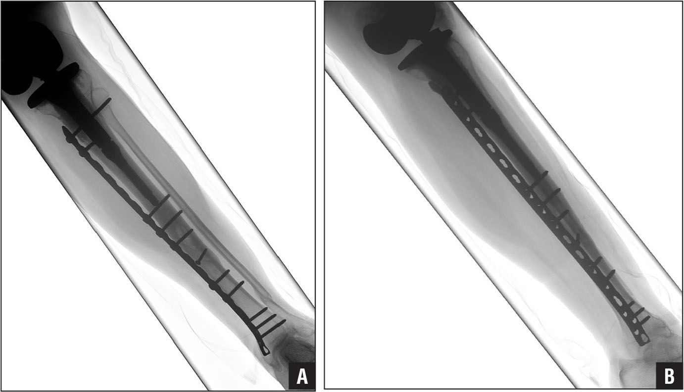 Anteroposterior (A) and lateral (B) radiographs of the 66-year-old woman of Figure 1 at 14 months after stabilization with locking screw and plate technology with a hybrid combination of locking and nonlocking screws.