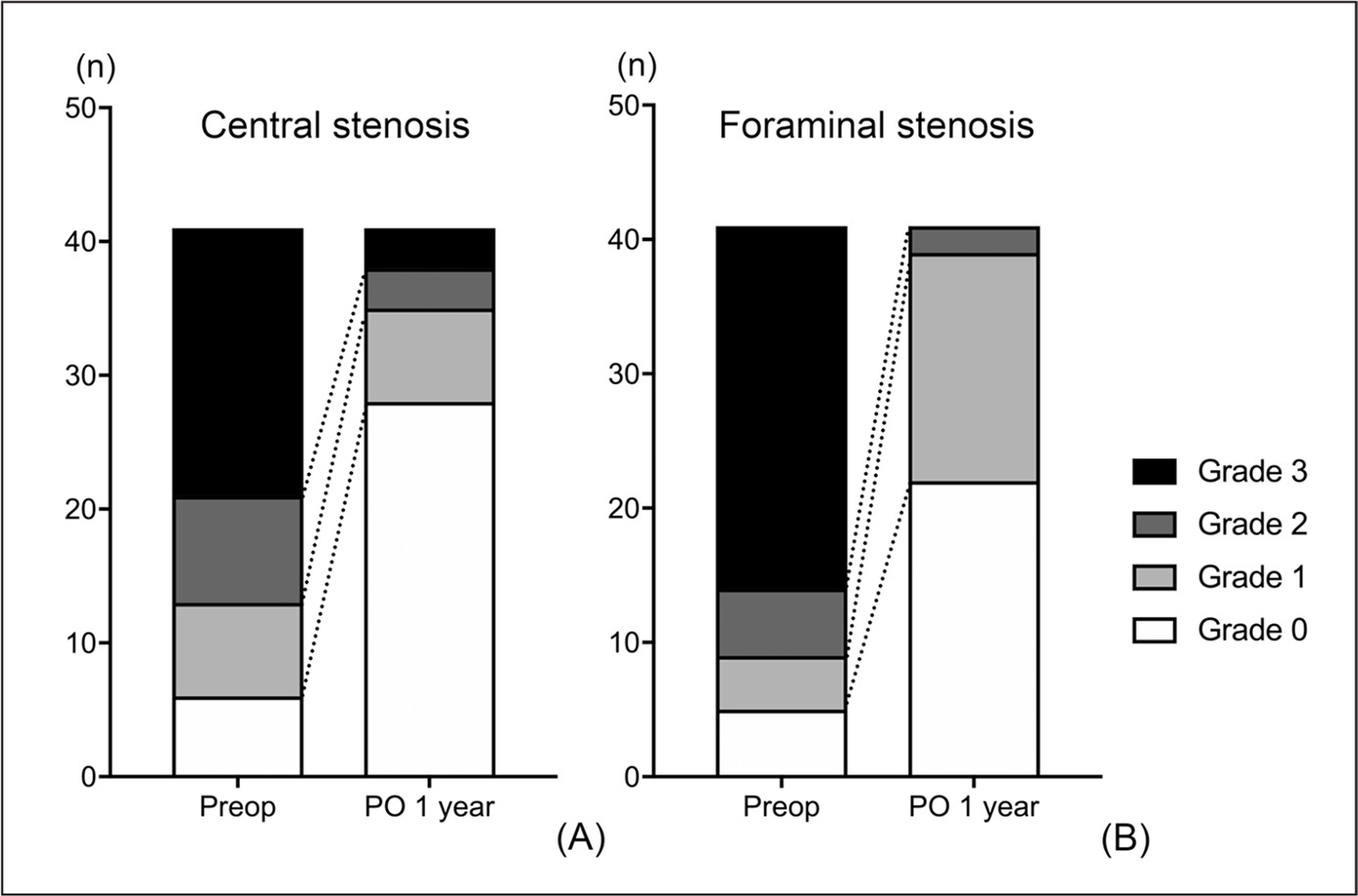 Distribution of the grades of the central canal (A) and foraminal (B) stenosis in the preoperative (Preop) and 1-year postoperative (PO) magnetic resonance images. Foraminal stenosis on the side of the predominant radiating pain is shown in this graph.