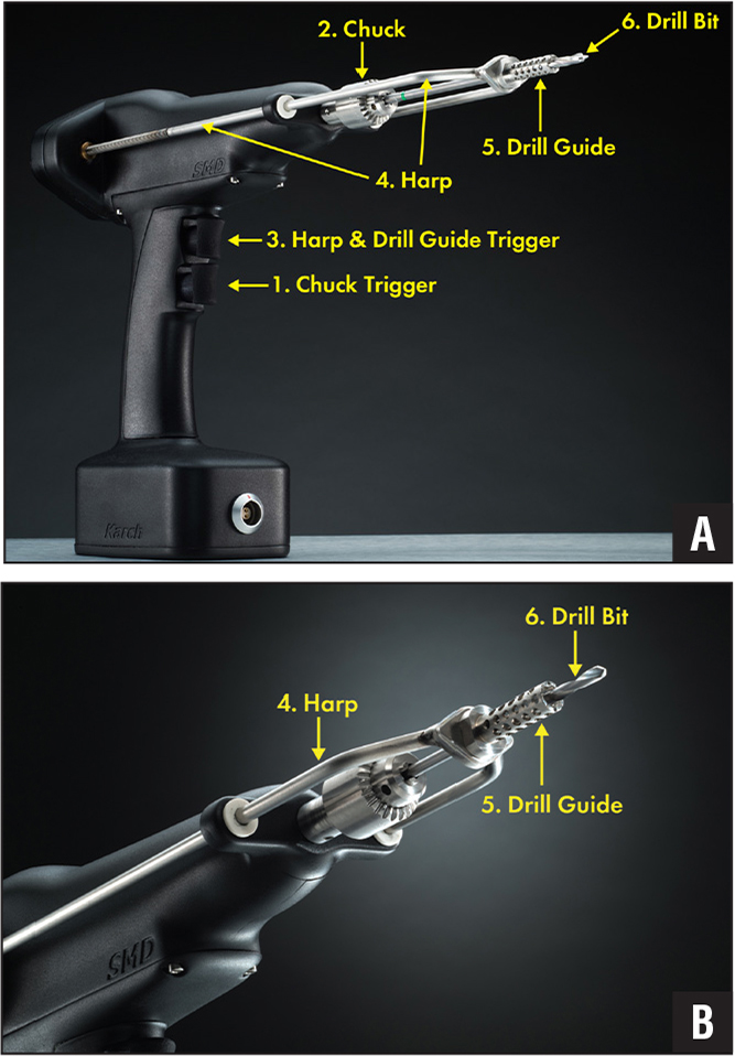A dual-motor drill functions like a hand-held drill press. Depression of the chuck trigger (1) engages the first motor to spin the chuck (2) similar to any standard orthopedic drill. Depression of the harp and drill guide trigger (3) engages the second motor to move the threaded harp (4) and drill guide (5) toward the operator, exposing the drill bit (6) and allowing it to enter the drilling substance. During drilling, the harp (4) and drill guide (5) remain fixed against the bone by the operator as the drill bit (6) enters the bone. The distance from the tip of the drill bit to the drill guide represents the depth of drilling and is displayed on a monitor. Additional sensors within the drill relay data to the monitor in real time (A). A close-up view of the drill bit (6), drill guide (5), and harp (4) (B).