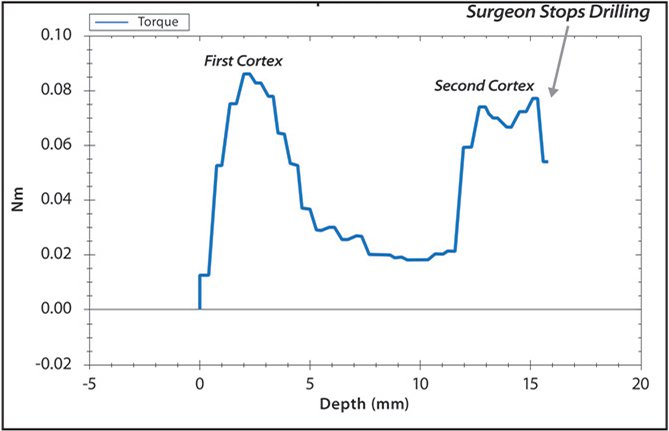 Example of visual monitor display of a torque plot with torque (Nm) (y-axis) and depth (mm) (x-axis) for a 15-mm hole drilled in a bone block model. Bicortical drilling creates a characteristic torque plot where the first peak indicates the near cortex, the trough represents the intramedullary canal, and the second peak represents the far cortex. When the drill bit traverses the far cortex, the torque decreases and the surgeons stops drill bit advancement by releasing the harp and drill guide trigger. Screw length can then be determined by examining the x-axis at the apex of the second peak (15 mm in this example).