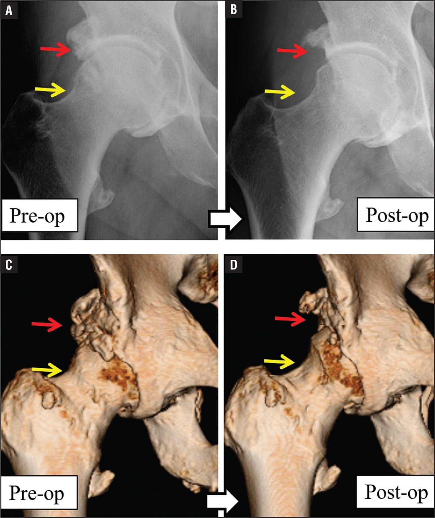 Pre- (A) and postoperative (B) radiographs and pre- (C) and postoperative (D) 3-dimensional computed tomography scans of diffuse idiopathic skeletal hyperostosis. Preoperatively, periarticular hyperostosis abnormally surrounded the femoral heads. Ossification was also seen at the attachment site of the iliopsoas muscle and the rectus femoris muscle. Arthroscopically, the anterosuperior excessive rim was totally trimmed and the obvious cam lesion was resected to relieve impingement.