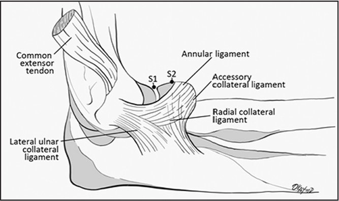 Lateral anatomy of the elbow shows suture 1 (S1) (traditional distal extent of capsulectomy) and suture 2 (S2) (alternative distal extent of capsulectomy).