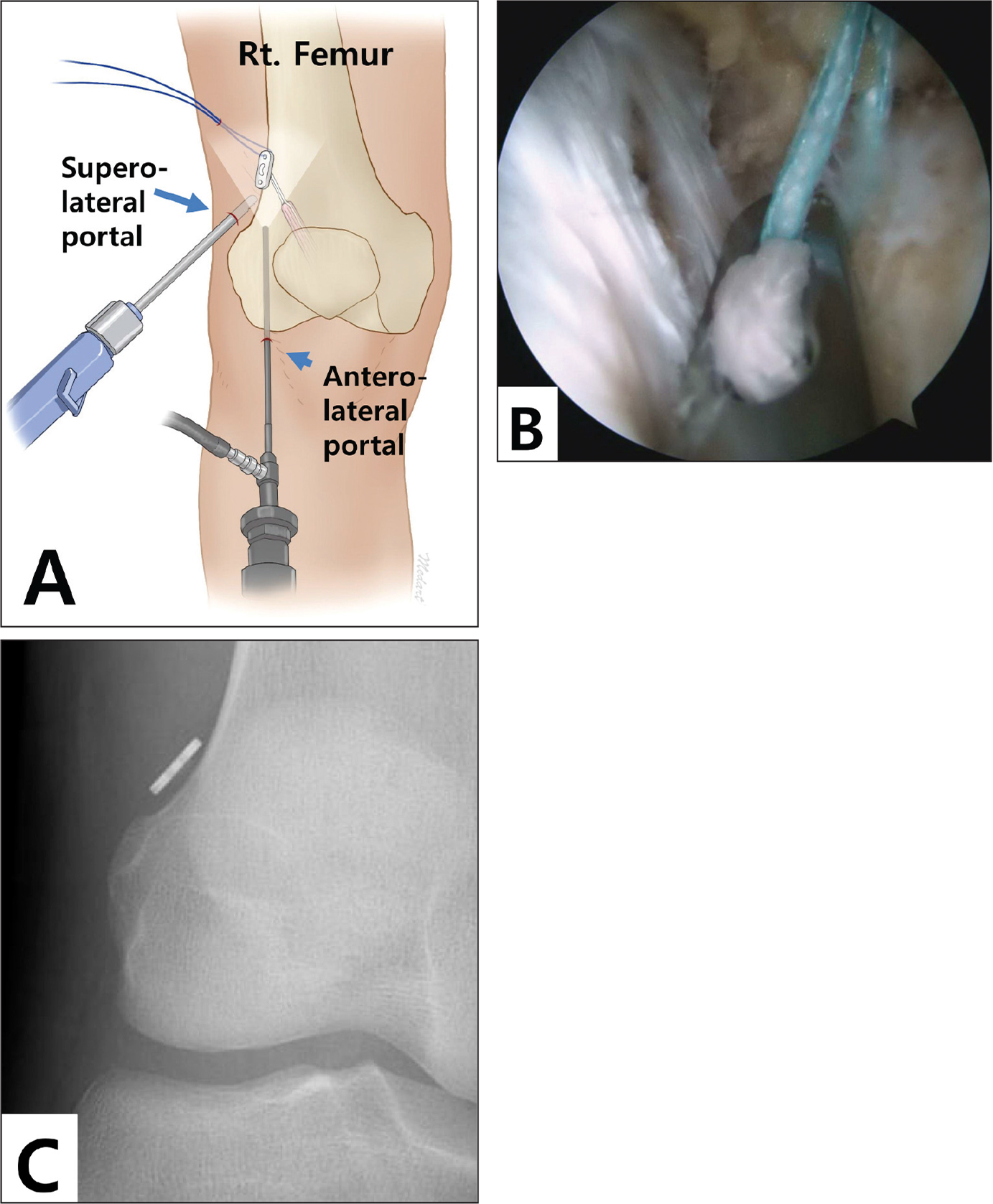 Illustration of an arthroscope inserted via the anterolateral portal and an arthroscopic shaver inserted via the superolateral portal (A). Arthroscopic image during the direct visualization technique showing secure seating of the button (B). Postoperative anteroposterior radiograph of the knee of the same patient showing cortical non-contact of the button (gap distance, 2.2 mm) (C).