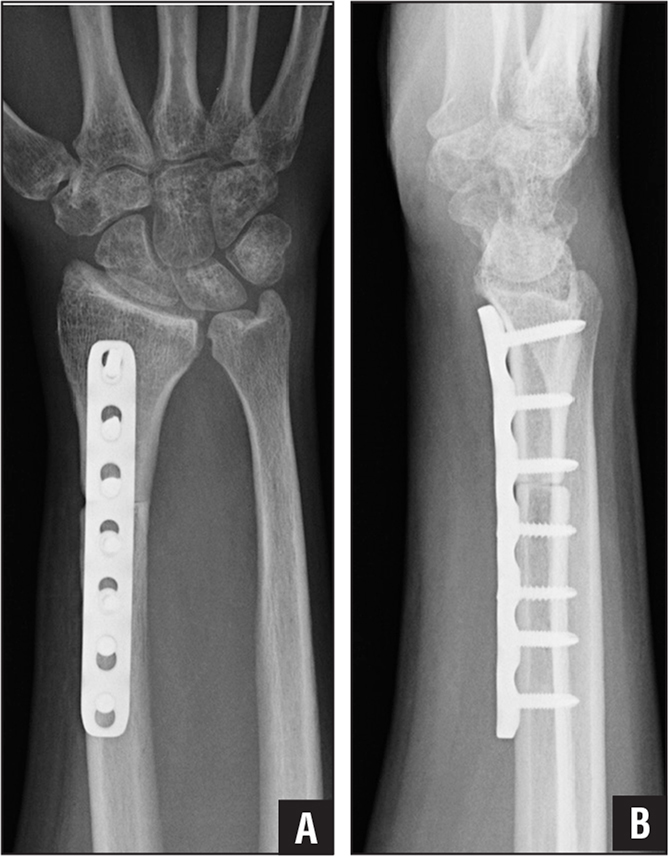 Anteroposterior (A) and lateral (B) radiographs of the distal radius after resection and osteoarticular allograft arthroplasty.