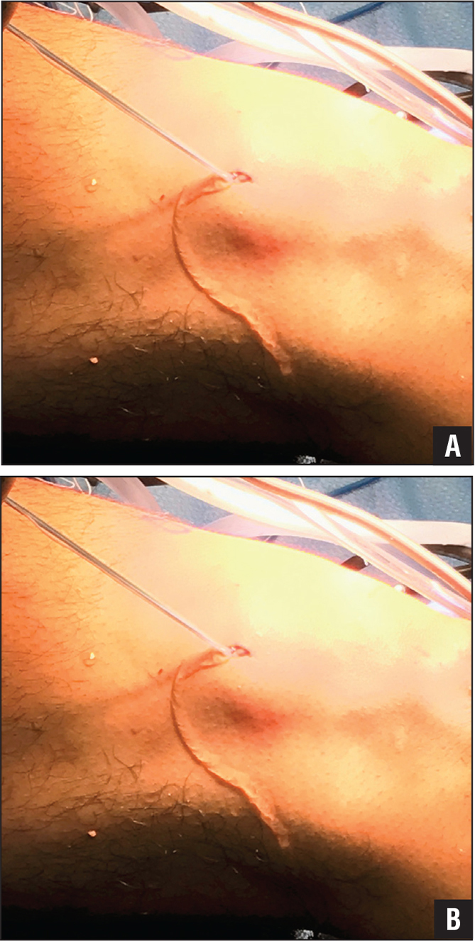 Intraoperative photographs during right knee anterior cruciate ligament reconstruction. Graft-passing sutures shown exiting though stab incision on lateral aspect of knee after being passed through the femoral tunnel (A). Arthroscopic shaver inserted through same stab incision. Notice tension constantly held on passing sutures (B).
