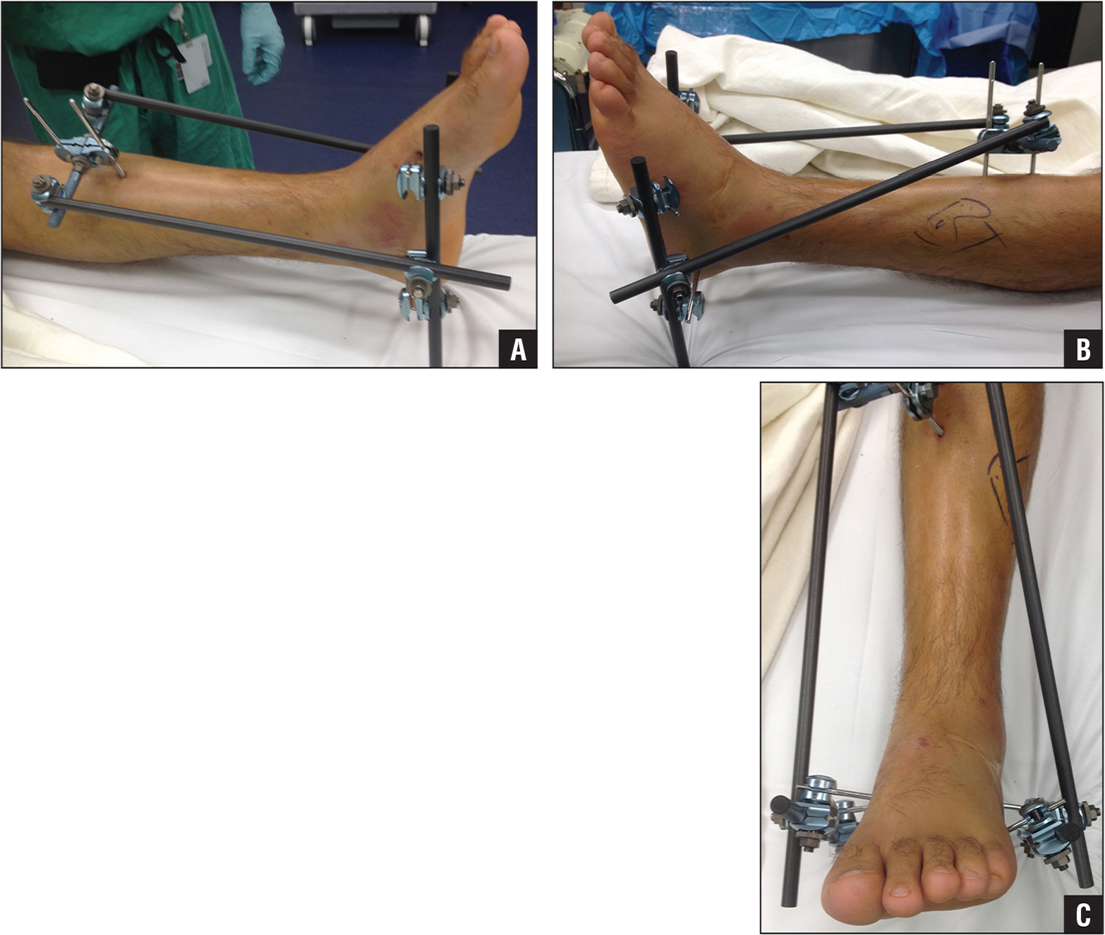 Views of the medial (A), lateral (B), and anterior (C) aspects of the leg and foot. The foot is 90° to the leg with the assistance of the metatarsal pins. The heel is suspended off the resting surface.