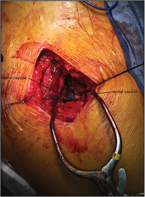 The braided nonabsorbable sutures are held apart on tension, clearly identifying the medial and lateral limbs of the anterior hip capsule.