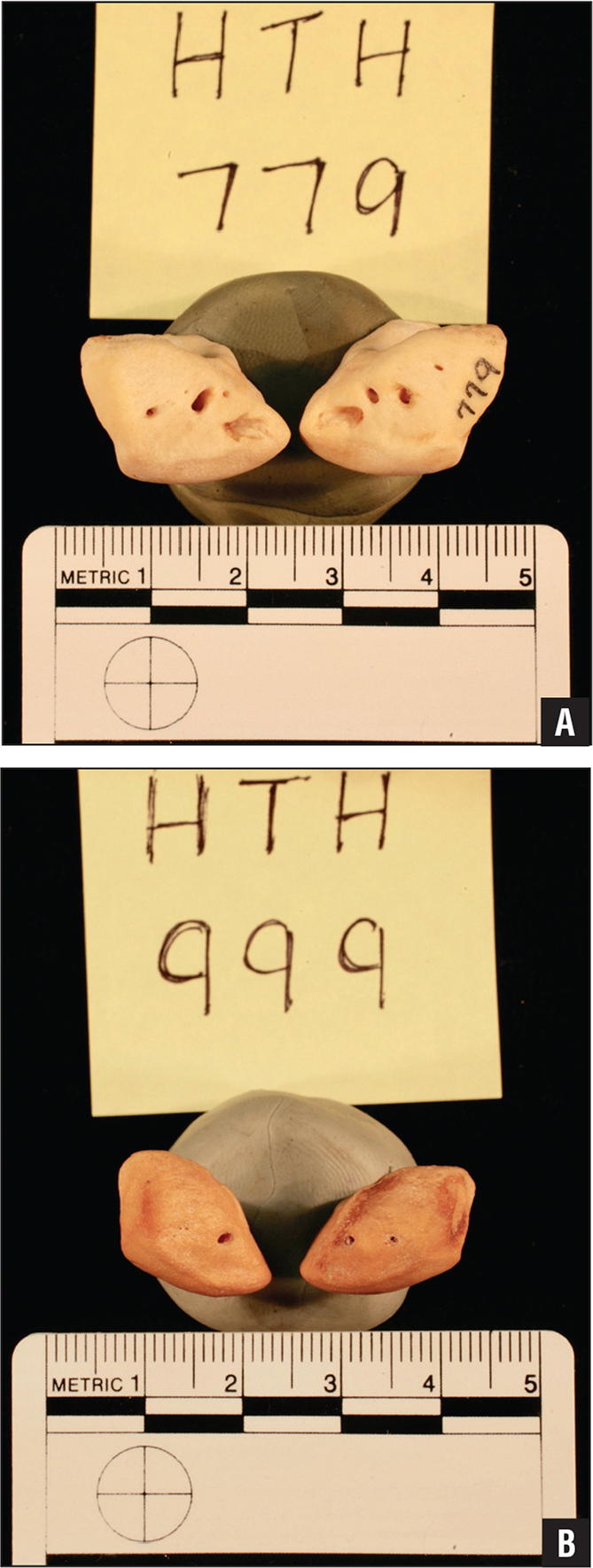 Anterior view photographs of the nutrient artery foramina of the right and left lunate bones from the volar aspect in 2 randomly selected specimens: HTH 779 (A) and HTH 999 (B).