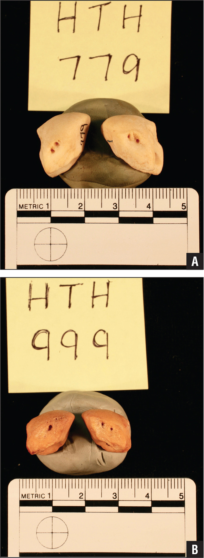 Posterior view photographs of the nutrient artery foramina of the right and left lunate bones from the dorsal aspect in 2 randomly selected specimens: HTH 779 (A) and HTH 999 (B).