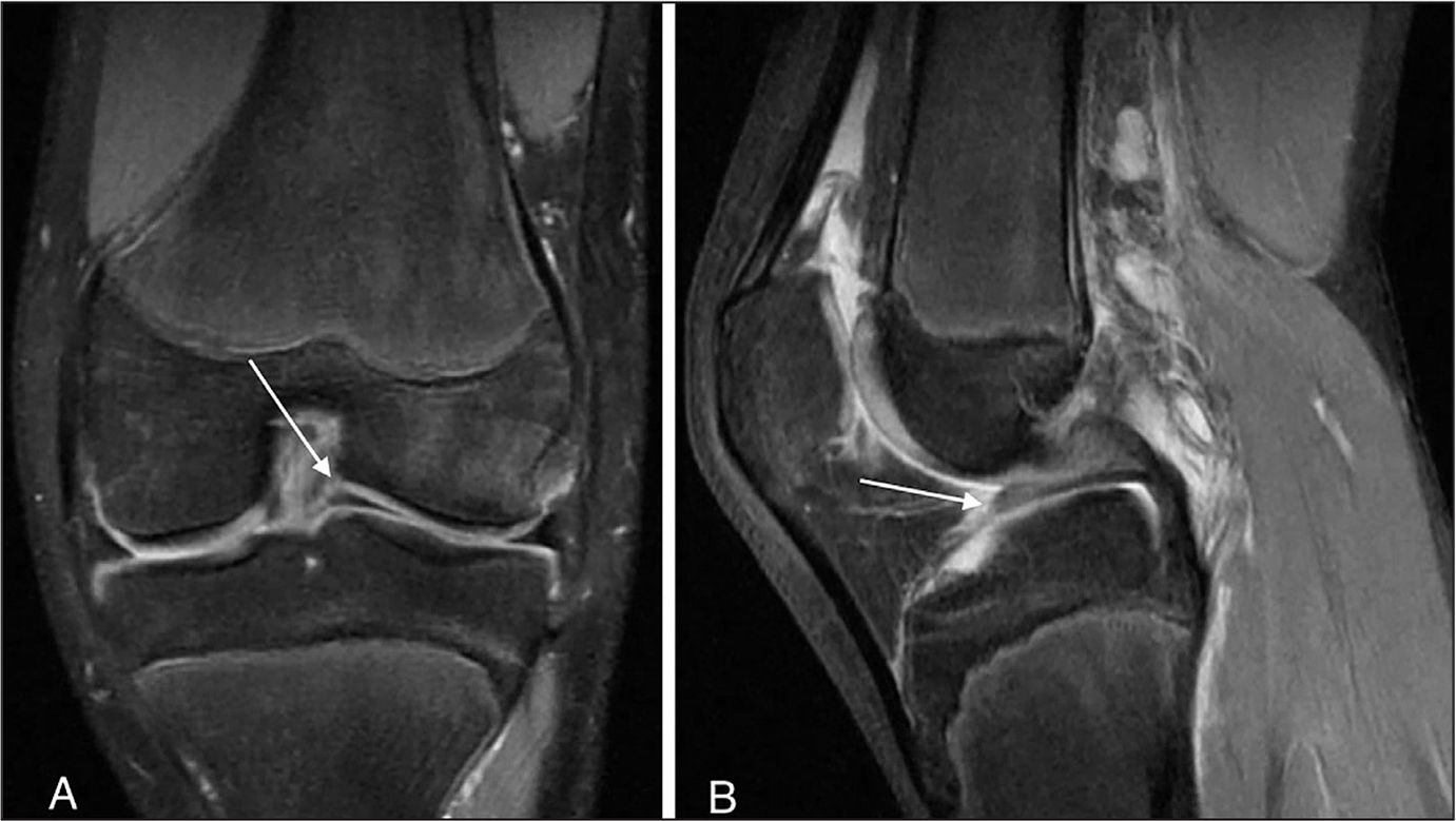 Coronal (A) and sagittal (B) PD T2 FS magnetic resonance images showing the lateral meniscus tissue near the intercondylar notch (arrows).