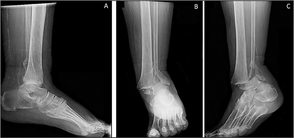 Lateral (A), anteroposterior (B), and oblique (C) radiographs of the ankle and foot on admission to the emergency department. These radiographs demonstrate an open (grade I) left ankle fracture dislocation.