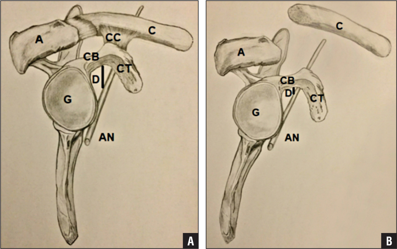 Sagittal view of normal anatomy (A). Sagittal view of anatomy after type V acromioclavicular joint separation with the scapula in downward rotation and anterior tilt (B). Abbreviations: A, acromion; AN, axillary nerve; C, clavicle; CB, coracoid base; CC, coracoclavicular ligaments; CT, coracoid tip; D, minimal distance between coracoid base and axillary nerve; G, glenoid.
