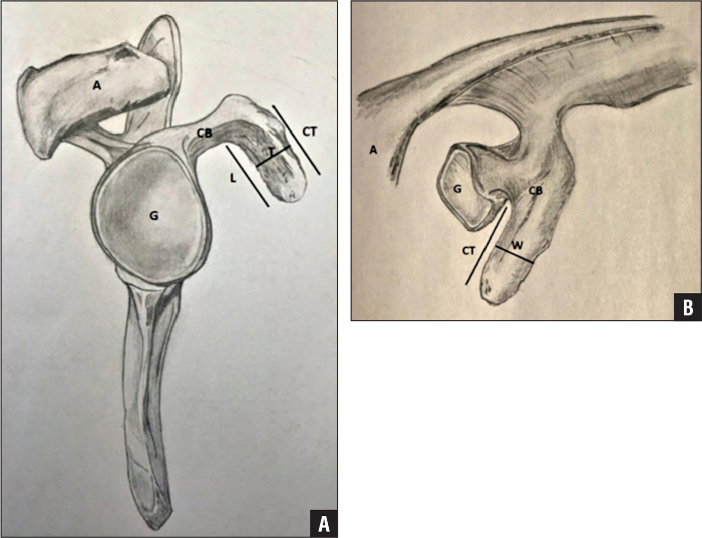 Sagittal view of coracoid tip dimensions (A). Axial view of coracoid tip dimensions (B). Abbreviations: A, acromion; CB, coracoid base; CT, coracoid tip; G, glenoid; L, length; T, thickness; W, width.