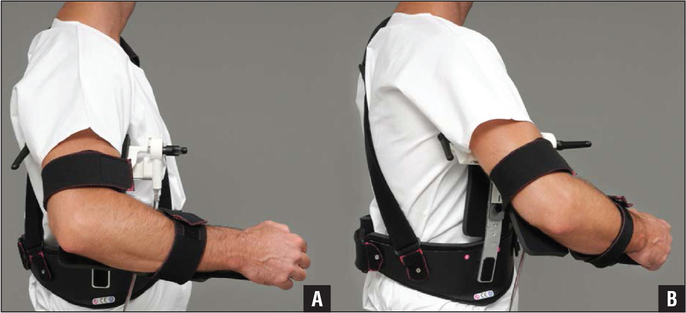 Arm position in the shoulder abduction brace: true frontal plane (A) and scapular plane (B).