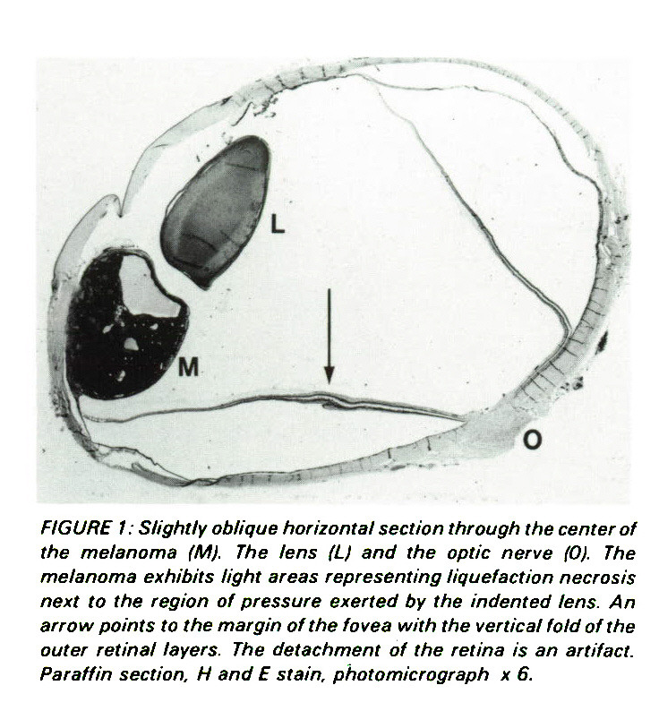 FIGURE 1 : Slightly oblique horizontal section through the center of the melanoma (M). The lens (L) and the optic nerve 0). The melanoma exhibits light areas representing liquefaction necrosis next to the region of pressure exerted by the indented lens. An arrow points to the margin of the fovea with the vertical fold of the outer retinal layers. The detachment of the retina is an artifact. Paraffin section. H and E stain, photomicrograph ? 6.