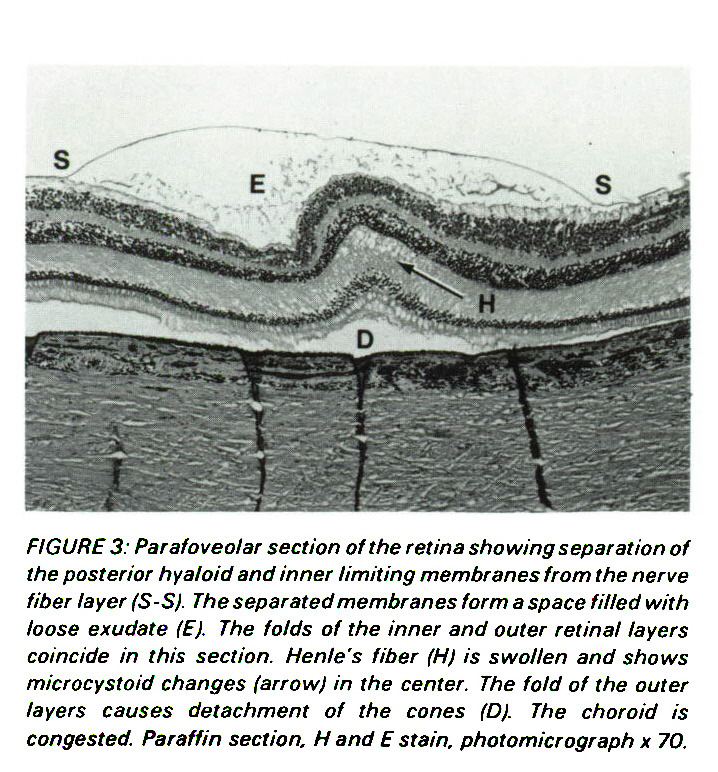 FIGURES: Parafoveolar section of the retina showing separation of the posterior hyaloid and inner limiting membranes from the nerve fiber layer (S-S). The separated membranes form a space filled with loose exúdate (E). The folds of the inner and outer retinal layers coincide in this section. Henle's fiber (H) is swollen and shows microcystoid changes (arrow) in the center. The fold of the outer layers causes detachment of the cones (D). The choroid is congested. Paraffin section, H and E stain, photomicrograph ? 70.