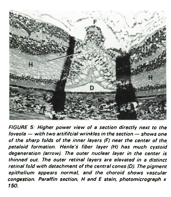 FIGURE 5: Higher power view of a section directly next to the foveola - with two artificial wrinkles in the section - shows one of the sharp folds of the inner layers (Fl near the center of the petaloid formation. Henle's fiber layer (H) has much cystoid degeneration farrow}. The outer nuclear layer in the center is thinned out. The outer retinal layers are elevated in a distinct retinal fold with detachment of the central cones (D). The pigment epithelium appears normal, and the choroid shows vascular congestion. Paraffin section, H and E stain, photomicrograph ? 150.